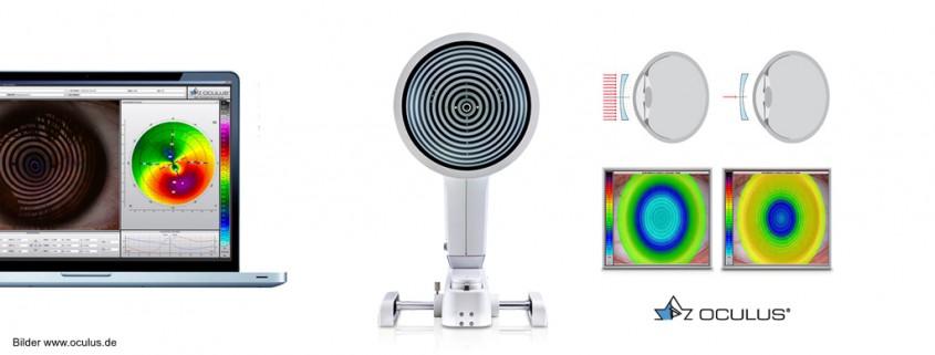 oculus_keratograph5m_koeln